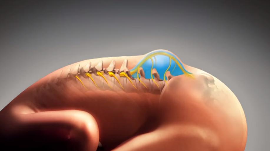 Spina Bifida - myéloméningocèle